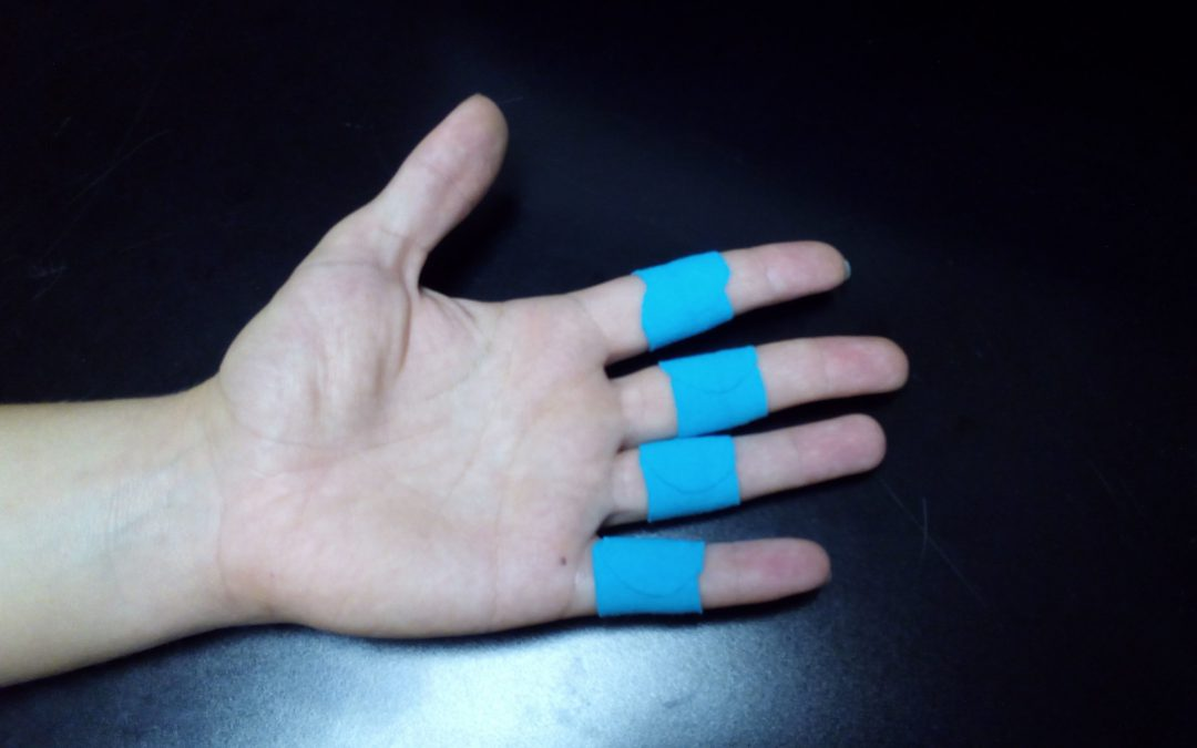 Treating Ehler Danlos Syndrome & Chiari Malformation with RockTape